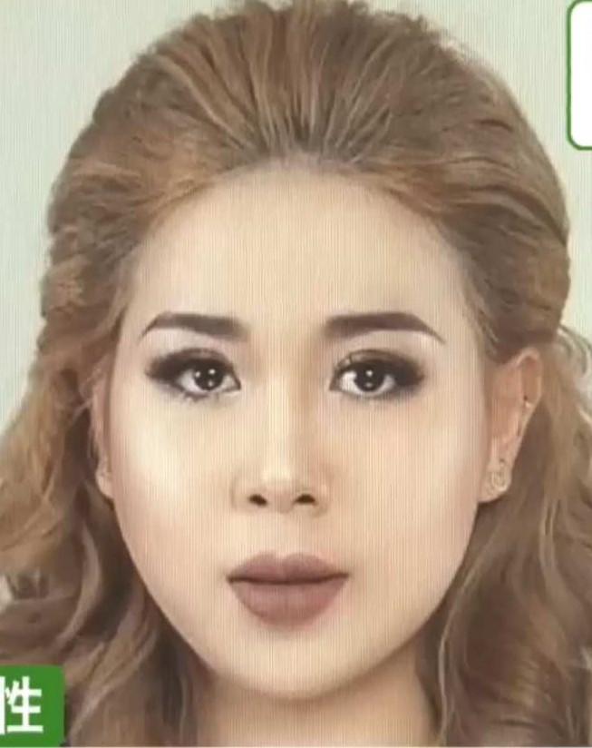 無免許で美容整形施術の20代ベトナム女性